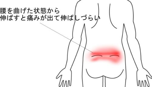 腰の違和感があった状態から走って痛みが悪化した腰痛の画像