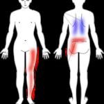 腰から下肢にかけてのしびれの症例画像