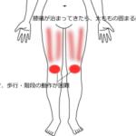 スキーで何度か転倒してから発症した膝痛の画像