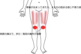 膝痛の症例1|愛知県一宮市の鍼灸院|堀田治療院