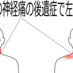 帯状疱疹後の首の痛み(その1)の症例画像