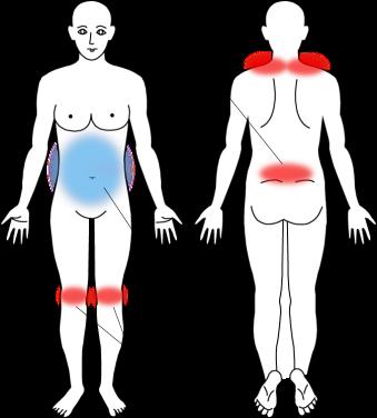 出産後から続く腰痛・膝痛の症例画像