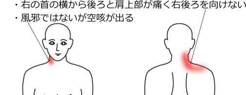 首・肩のこりの症例2|愛知県一宮市の鍼灸院|堀田治療院