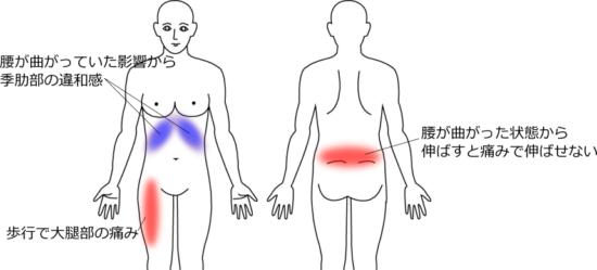 腰を伸ばすと痛み、歩行で足に痛みが出るの症例画像