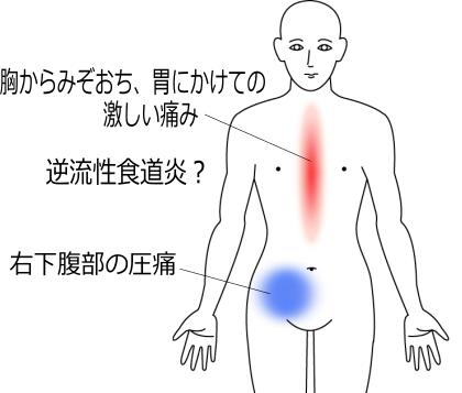 過度の減量からさらに断食後に胸からお腹の痛みの症例画像