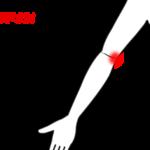ボールを投げると肘の内側が痛む(野球肘)の症例画像