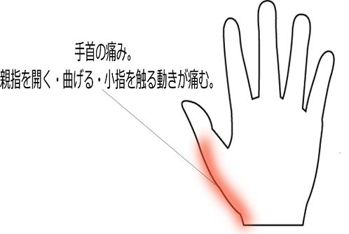 赤ちゃんの抱っこ・授乳による手首の腱鞘炎の症例画像