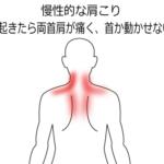 肩こりが続いていて、起床時から首肩が動かせないの症例画像