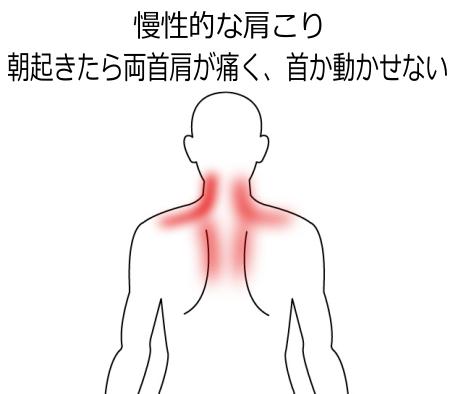 首・肩のこりの症例3|愛知県一宮市の鍼灸院|堀田治療院