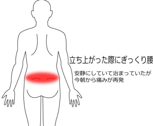 ぎっくり腰の再発の症例画像