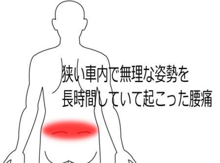 腰痛の症例5|愛知県一宮市の鍼灸院|堀田治療院