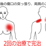 乳がんの手術後から腕を動かすと傷口が突っ張って動かしづらいの鍼灸施術症例画像