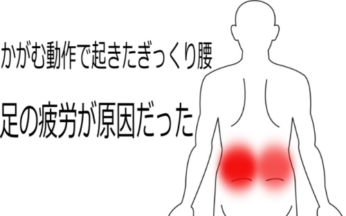かがむ動作で起こったぎっくり腰の鍼灸施術症例画像