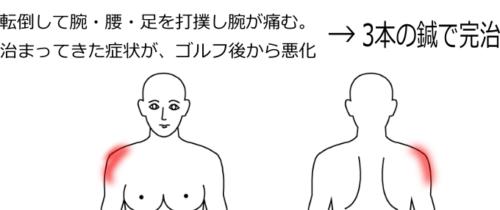 五十肩の症例3|愛知県一宮市の鍼灸院|堀田治療院