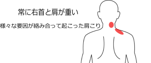 首・肩のこりの症例4 愛知県一宮市の鍼灸院 堀田治療院