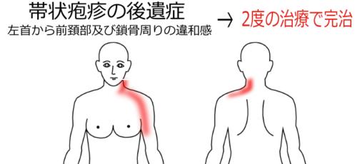 帯状疱疹後の首の痛み(その2)の鍼灸施術症例画像