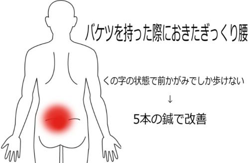 バケツを持った際におきたぎっくり腰の鍼灸施術症例画像