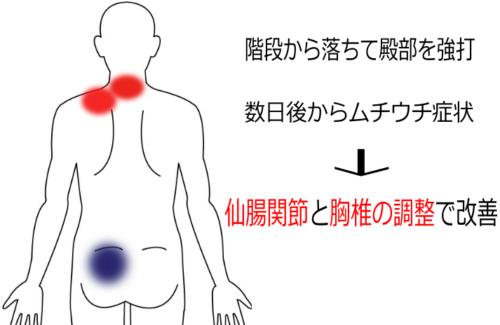 首肩こりの治療症例6|愛知県一宮市の鍼灸院|堀田治療院