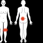 暫くかがんでから立ち上がると痛む腰痛の鍼灸施術症例画像