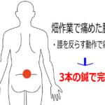 畑作業後からある腰痛の鍼灸施術症例画像