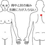 神経痛・しびれの治療症例4|愛知県一宮市の鍼灸治療院|堀田治療院