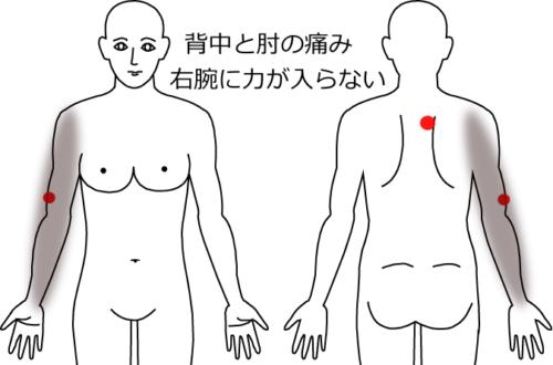 背中の痛みから、腕にかけての痛み・しびれの鍼灸施術症例画像