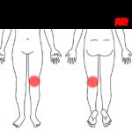 振り向いた際に「ピキッ」ときた後から痛む膝痛の鍼灸施術症例画像