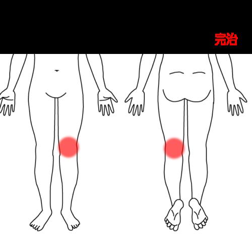 膝痛の治療症例3|愛知県一宮市の鍼灸治療院|堀田治療院