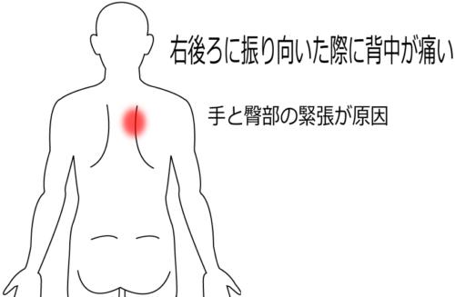 背中の痛みの治療症例2|愛知県一宮市の鍼灸院|堀田治療院