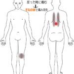 背中の痛みの治療症例1|愛知県一宮市の鍼灸治療院|堀田治療院