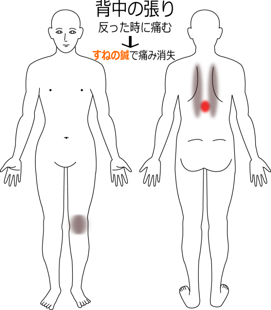 反った時の背中の痛みの鍼灸施術症例画像