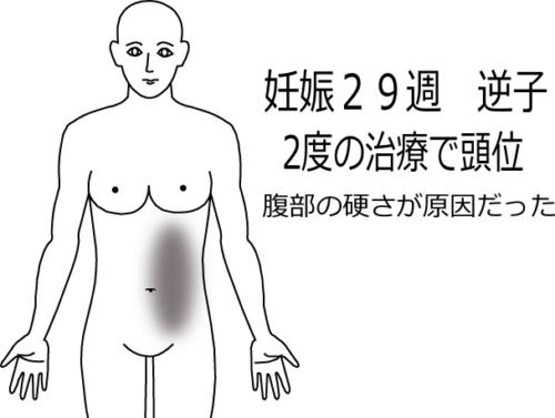 妊娠29週逆子の鍼灸施術症例画像
