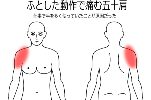 仕事で手をよく使い、荷物を持ってから痛みだした肩の痛みの鍼灸施術症例画像