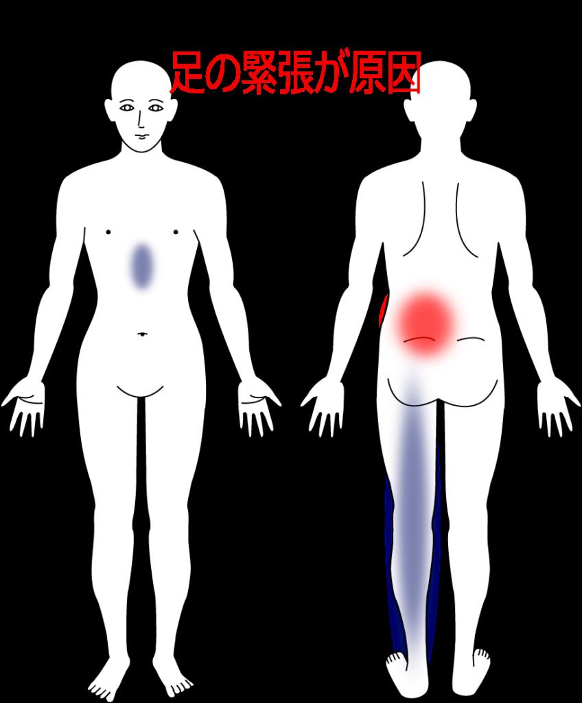 腰痛症の治療症例16|愛知県一宮市の鍼灸院|堀田治療院