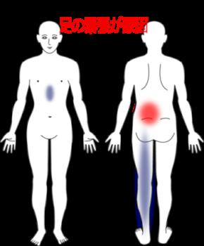 立っていると痛みが出る腰痛と腹部の違和感の鍼灸施術症例画像