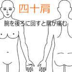 腕の痛みから始まった四十肩の鍼灸施術症例画像