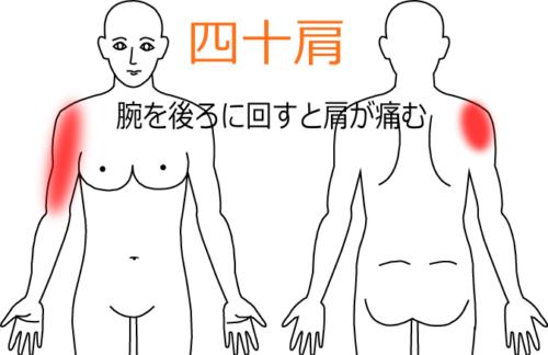五十肩の治療症例5|愛知県一宮市の鍼灸院|堀田治療院