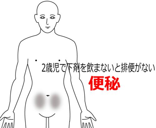 2歳児にして下剤を飲まないと排便がないの鍼灸施術症例画像