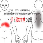 神経痛・しびれの治療症例|愛知県一宮市の鍼灸治療院|堀田治療院