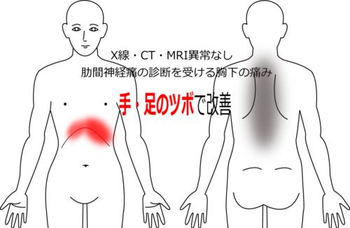 2年前から続く肋間神経痛の鍼灸施術症例画像