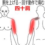 1か月ほど続く肩関節から腕の痛みの鍼灸施術症例画像