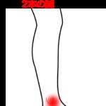 足首の痛みの治療症例1|愛知県一宮市の鍼灸治療院|堀田治療院
