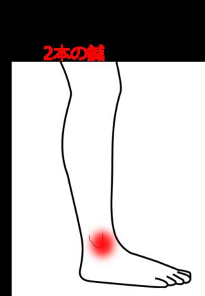 歩くと足首に違和感があるの鍼灸施術症例画像