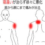 首・肩のこり(頚腕症候群)の治療症例7|愛知県一宮市の鍼灸治療院|堀田治療院
