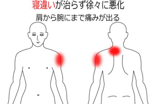 寝違いが治らず肩から腕まで痛みが出るの鍼灸施術症例画像