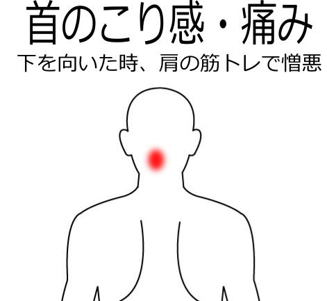 下を向くと首のこりが増して痛むの鍼灸施術症例画像