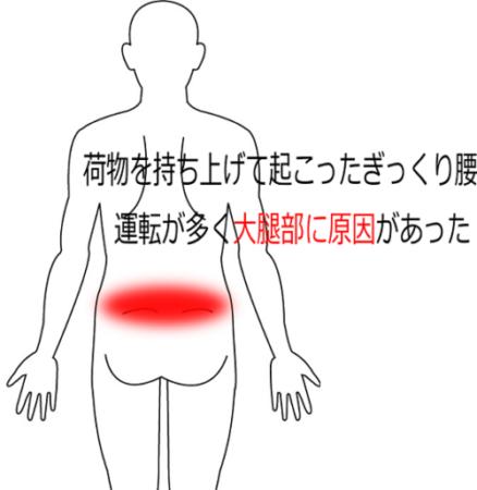 荷物を持った時に起きたぎっくり腰の鍼灸施術症例画像