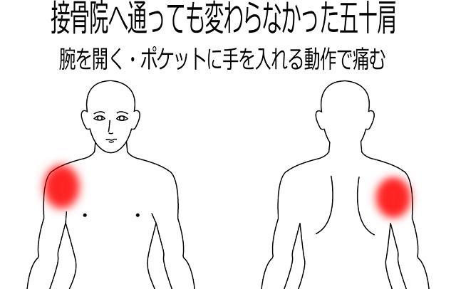 五十肩の症例7|一宮市の鍼灸院は堀田治療院