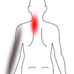 顔を上へ向く動作で腕から指がしびれるの鍼灸施術症例画像