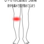 しゃがんでから痛む膝痛の画像